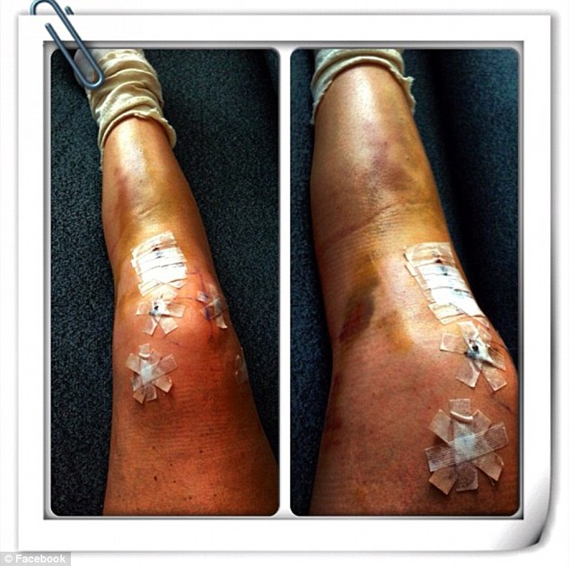 Lindsey Vonn leg photo, skier updates fans following surgery