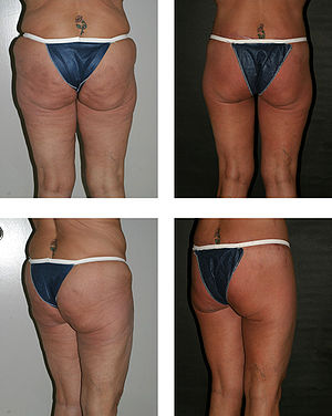 Gluteoplasty: the pre-operative, back and oblique-right aspects (left), and the like post-operative aspects (right), of a combined procedure of buttocks augmentation and thigh contouring.