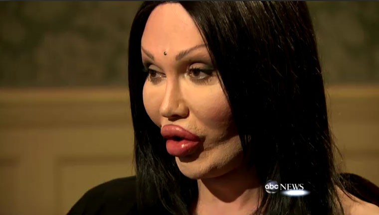 Pete Burns Botched Plastic...