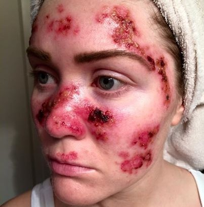 Skin Cancer, Woman Posts Shocking Photo Online