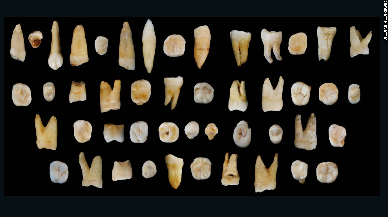 These 47 teeth, estimated to be between 80,000 and 120,000 years old, were found in a cave in Dao county, Hunan province in China.
